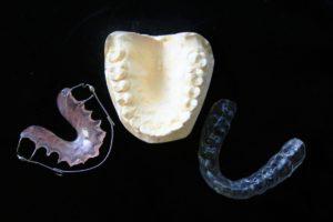 À qui s'adresse l'appareil dentaire invisible?